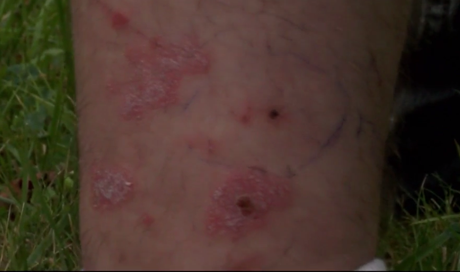 These are the marks that a rattlesnake left on a man in Flint Township.