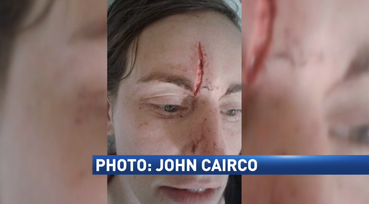 John Cairco snapped this photo of the injuries his girlfriend, Renee says she received while counter-protesting at the white nationalist rally Saturday in Virginia. (PHOTO: John Cairco)
