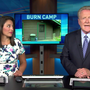 Special camp for kids with burn injuries