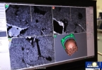Better Success with Brain Surgery:  Advanced imaging technology improves precision